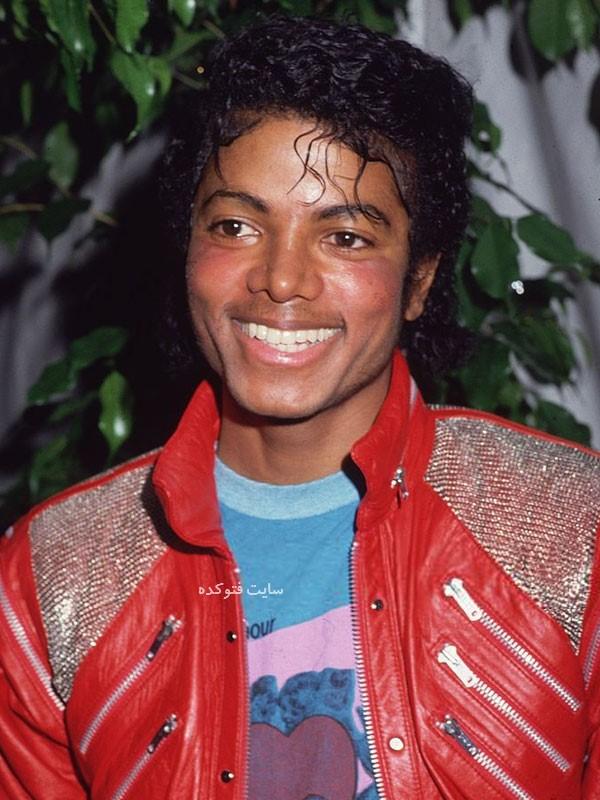 مایکل جکسون قبل از عمل زیبایی و بینی
