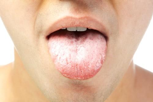 درمان سفیدی زبان با طب سنتی