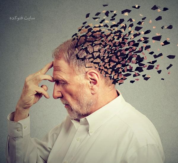 پیشگیری از آلزایمر در جوانی