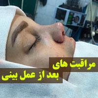 مراقبت های بعد از عمل بینی + 27 توصیه بعد از جراحی بینی