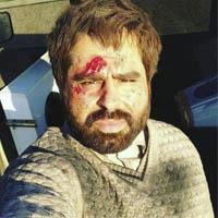 امیر نوری در مبارزه با داعش زخمی شد ؟