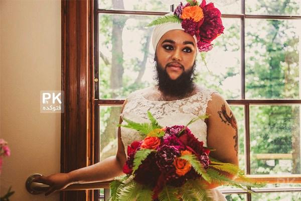 عکس های عروس ریش دار,عکس های دختر ریش دار,عکس عروس خانوم با ریش مردانه,عکس بیماری های ناشناخته و جالب,عروس خوشگل با ریش,عکس عجیب و جنجالی عروس با ریش