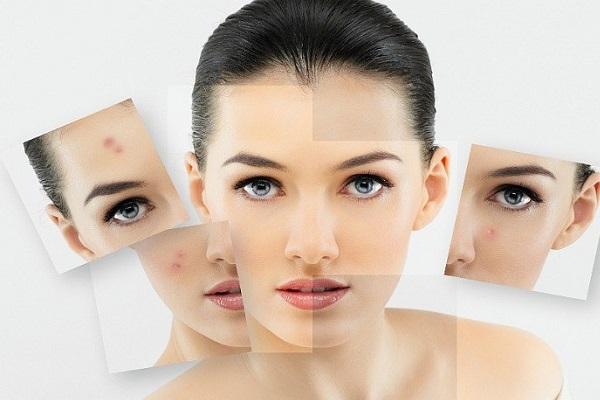 درمان آکنه با ماسک عسل