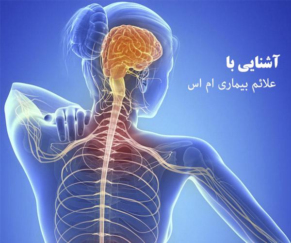 علائم ام اس چیست + نشانه های بیماری ام اس
