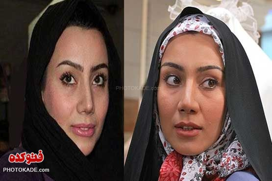 عکس بازیگران زن قبل و بعد از عمل زیبایی