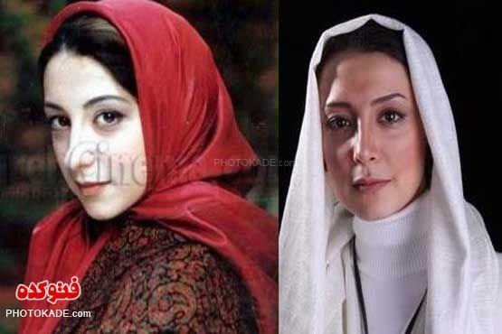 دانیال حکیمی قبل وبعد از عمل بینی عکس بازیگران زن قبل و بعد از عمل زیبایی