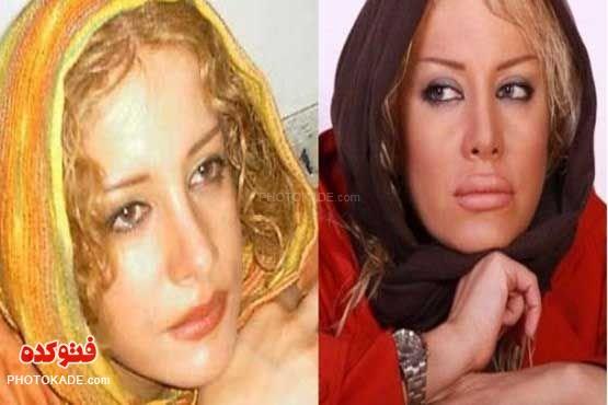 عکس بازیگران زن قبل و بعد از عمل زیبایی,عکس بازیگران معروف قبل از عمل جراحی بینی,عکس های لو رفته از بازیگران زن قبل از عمل زیبایی,عکس های لو رفته بازیگران قبل و بعد از عمل زیبایی روی صورت