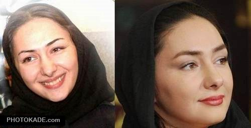 عکس هانیه توسلی قبل از عمل بینی