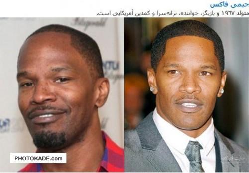 هنرمندان معروف قبل و بعد از کاشت مو,بازیگران معروف قبل و بعد از کاشت مو,عکس سلبریتی های معروف قبل و بعد از کاشت مو,مشهورترین افراد خارجی قبل بعد از کاشت مو