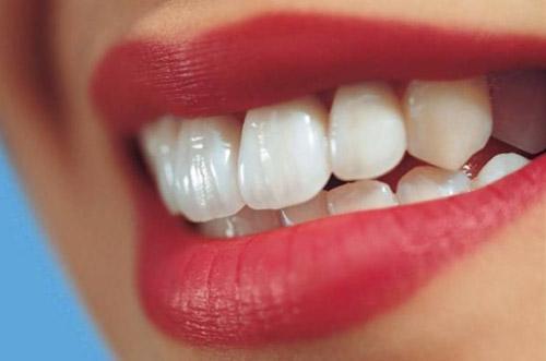 کامپوزیت دندان چیست + عوارض معایب و بهترین مارک