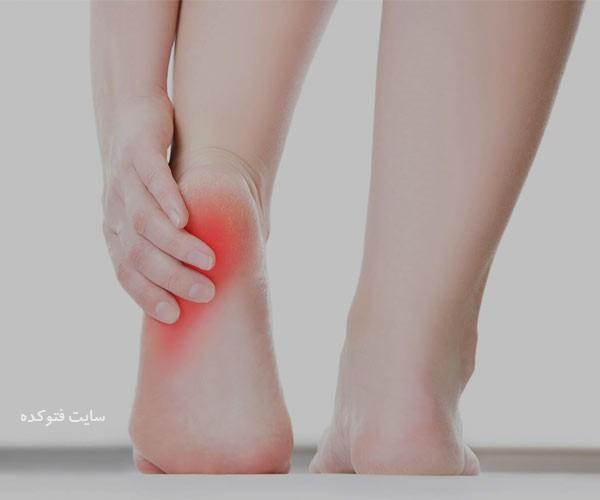 علت و درمان درد پاشنه پا چیست