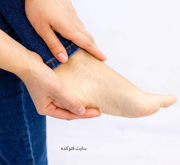 درد پاشنه ی پا نشانه چیست