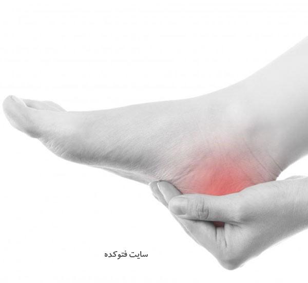 درمان درد پاشنه پا در طب سنتی و گیاهی