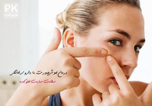 درمان جوش صورت با داروی خانگی