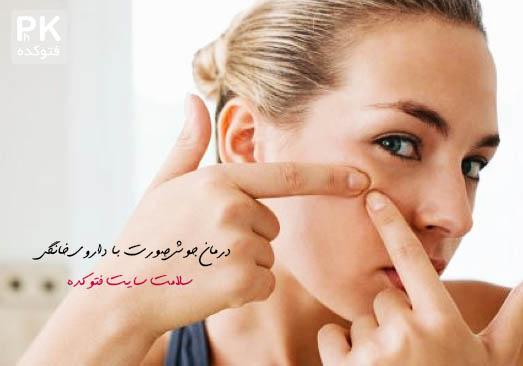 درمان جوش صورت با داروی خانگی,جوش صورت,,داروی درمان جوش صورت,ترکوندن جو صورت,از بین بردن جوش صورت,رفع مشکل جوش صورت,درمان طبیعی جوش صورت,روش خوشگلی صورت