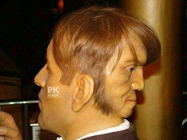 مردی با دو صورت در جلو و عقب سر,عوارض ازدواج با خواهر,ادوارد مورداک کیست,عکس کسی که دو صورت دارد,انسانی که در پشت سر خود هم چشم دارد,صورت در جلو و عقب سر