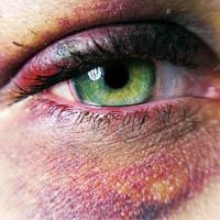 التیام دهنده طبیعی کبودی با درمان خانگی