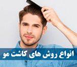 روش کاشت مو