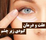 علت کبودی زیر چشم