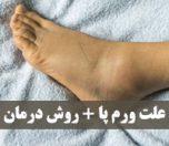 علت ورم پا و روش های درمان