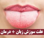 علت سوزش زبان نشانه چیست
