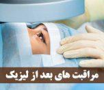 مراقبت های بعد از لیزیک چشم
