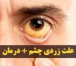 زردی چشم نشانه چیست