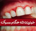 علت خونریزی لثه هنگام مسواک زدن