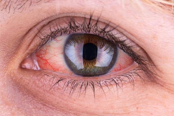 قرمزی چشم نشانه چیست + درمان قرمزی چشم