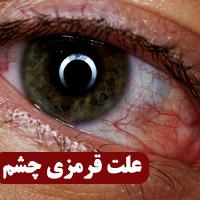علت قرمزی چشم نشانه چیست + درمان خانگی قرمزی چشم