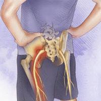 درمان درد سیاتیک با ورزش + علایم و درد سیاتیک چگونه است