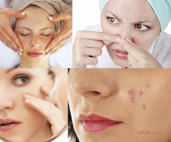 علت جوش زیر پوستی + روش های درمان