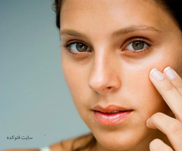 کبودی زیر چشم نشانه چیست + روش های درمان