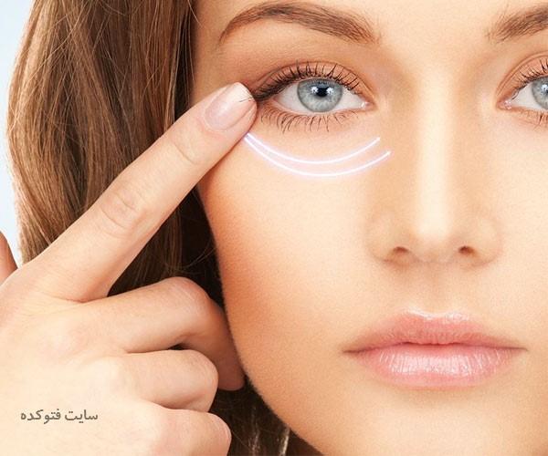 علت گودی و کبودی زیر چشم