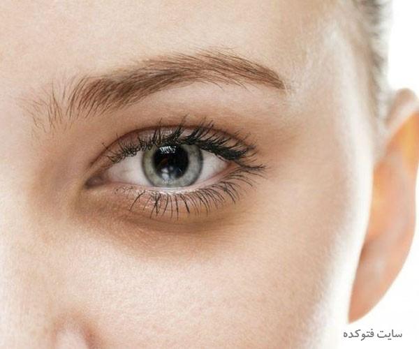 علت گودی و کبودی زیر چشم نشانه چیست