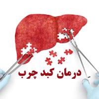 درمان کبد چرب با طب سنتی + 20 درمان سنتی کبد چرب
