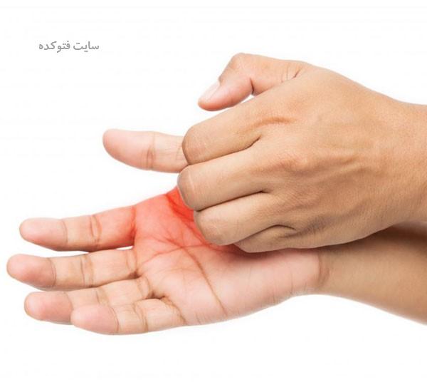 درمان خارش کف دست راست و چپ در طب سنتی
