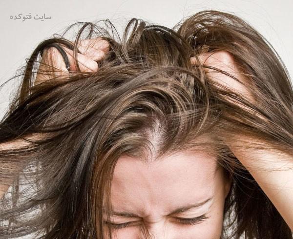 دلایل خارش سر و ریزش مو + روش های درمان خانگی