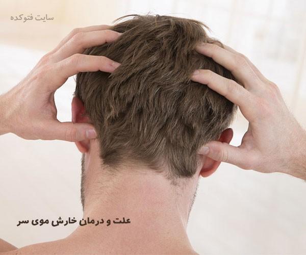 علت خارش سر و درمان خارش سر با طب سنتی و گیاهی