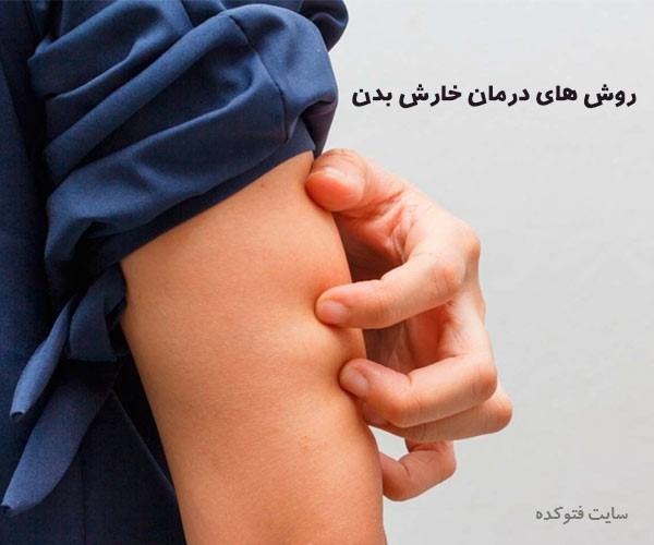 درمان خارش دست و پا با روش های علمی و سنتی