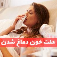 علت خون دماغ شدن | علت خونریزی بینی در خواب + درمان