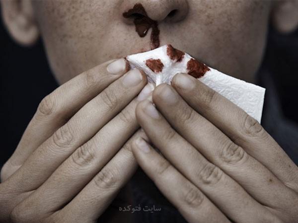 علت خونریزی بینی در خواب و نشانه بیماری