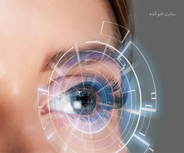 مراقبت های بعد از عمل لیزیک چشم