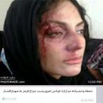 ماجرای حمله اراذل اوباش به مهناز افشار