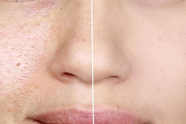 روش بستن منافذ باز پوست با لیزر