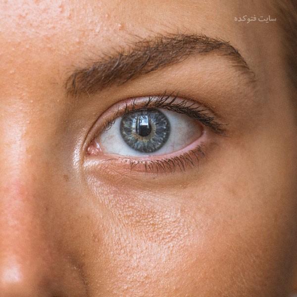 حذف منافذ باز پوست صورت