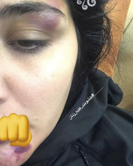 حمله به مریم معصومی با عکس صورت زخمی