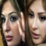 عکس بازیگران قبل و بعد از عمل بینی
