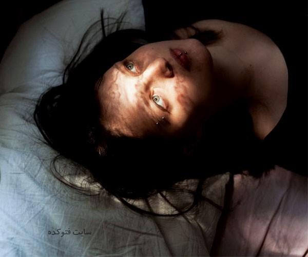 علت پرش اندام در خواب + روش درمان
