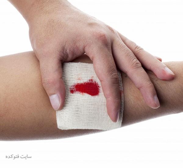علت پایین آمدن پلاکت خون